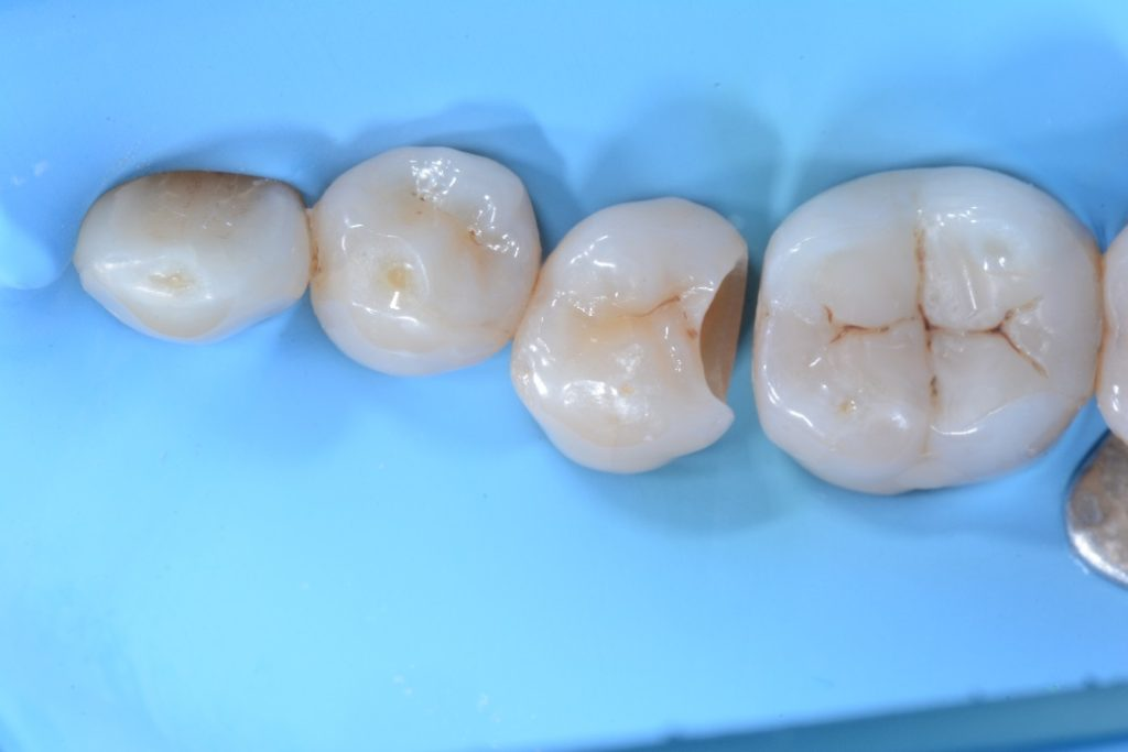 Dr. Chiodera - Class 2 restoration on second bicuspid - myQuickmat Forte kit sectional matrix system 3