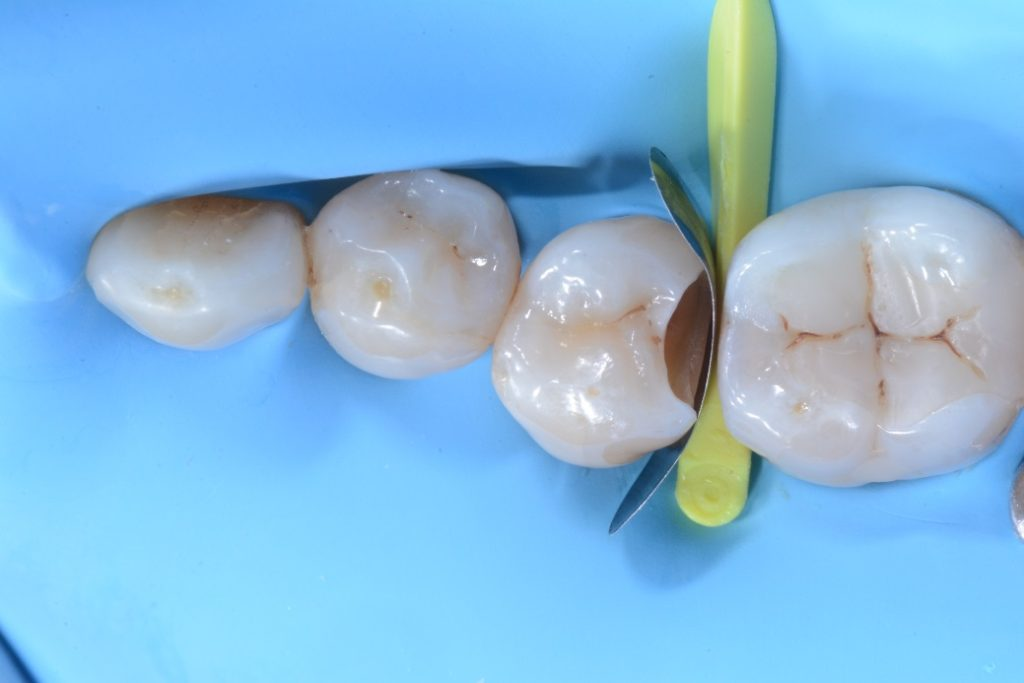 Dr. Chiodera - Class 2 restoration on second bicuspid - myQuickmat Forte kit sectional matrix system 4