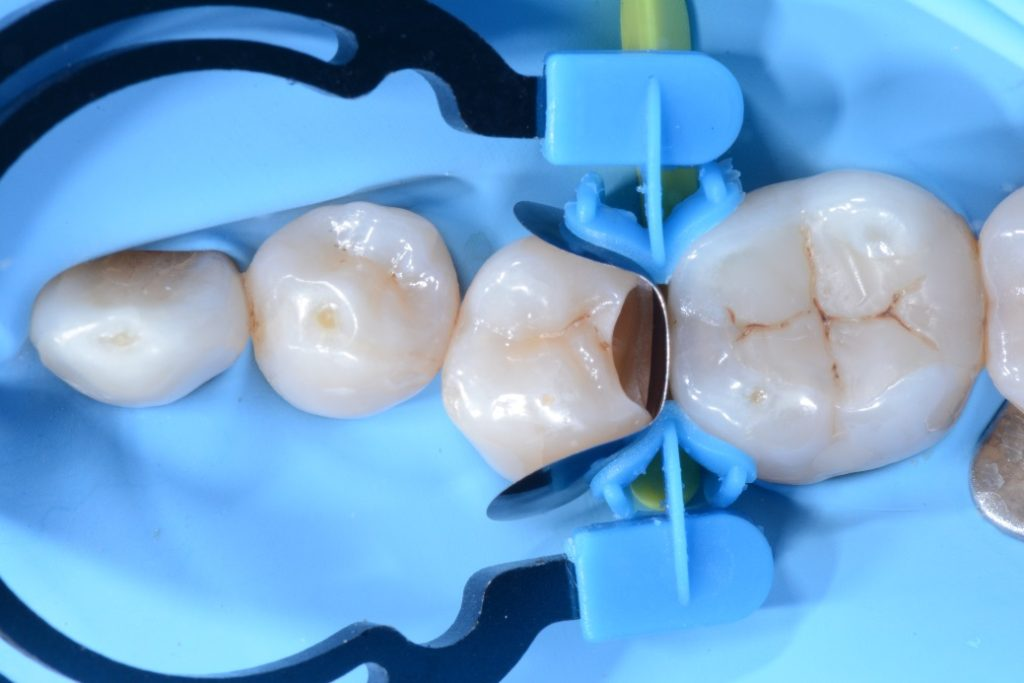 Dr. Chiodera - Class 2 restoration on second bicuspid - myQuickmat Forte kit sectional matrix system 7