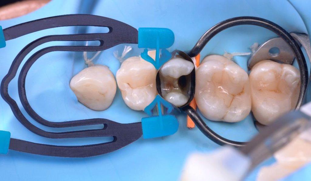 07 Dr. Gerdolle - Restauro Classe II distale mesiale MOD - myClip 2.0
