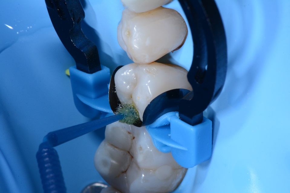 Dr. Chiodera - Class 2 restoration on second bicuspid - myQuickmat Forte kit sectional matrix system 8