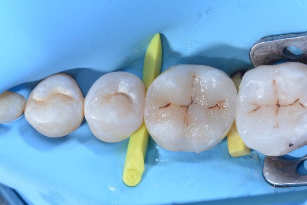 Dr Chiodera Mod Restoration On First Molar Myquickmat Classico