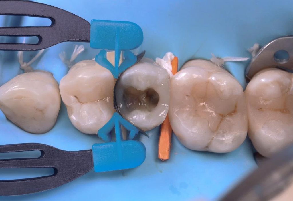 09. Dr. Gerdolle - Class II Mesial, Distal and MOD - myClip 2.0