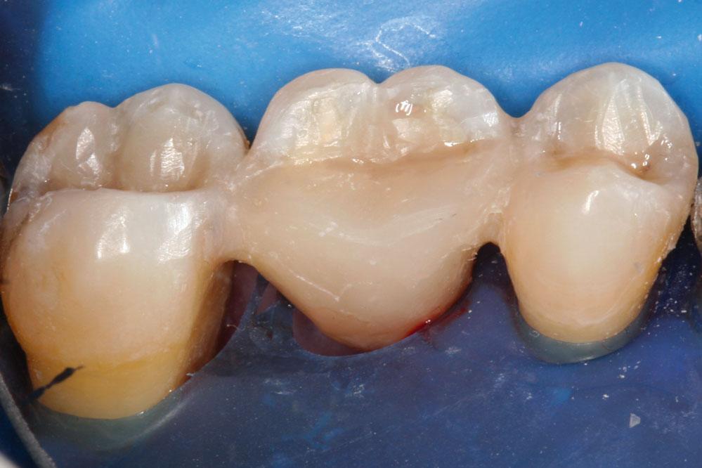 FiberSplint ML multilayer Fiberglass Dental Splinting