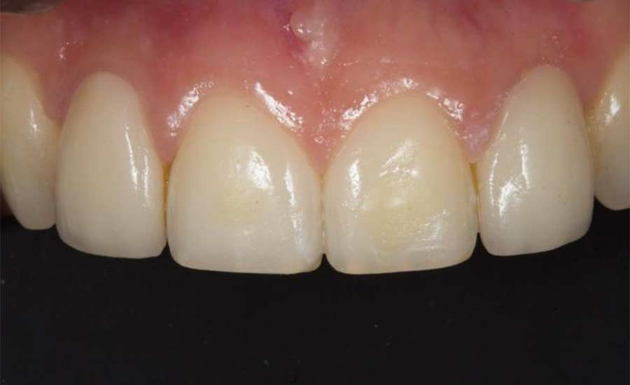 Dr Villares shape modification unica anterior 1