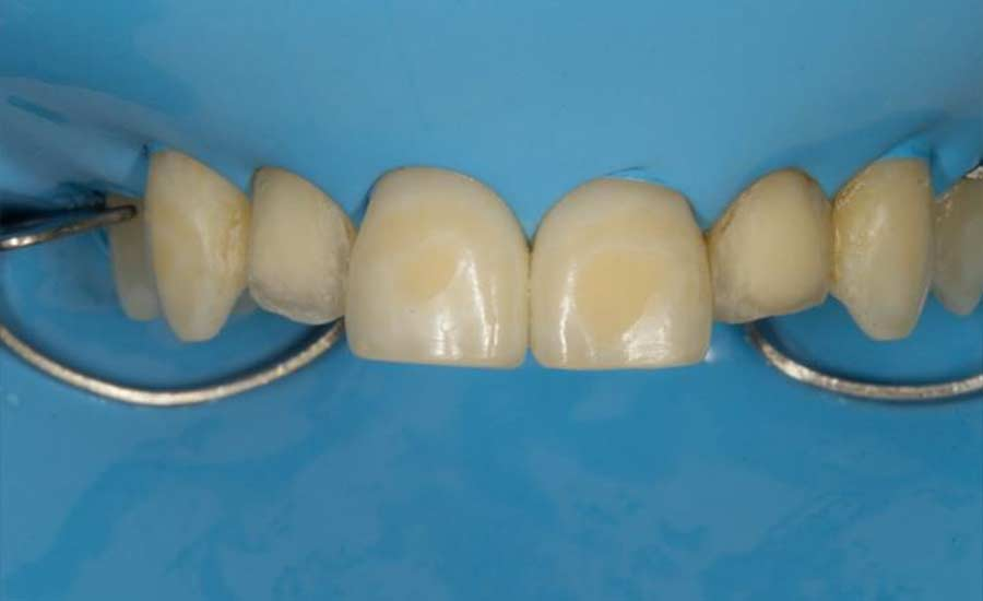 Dr Villares shape modification unica anterior 2
