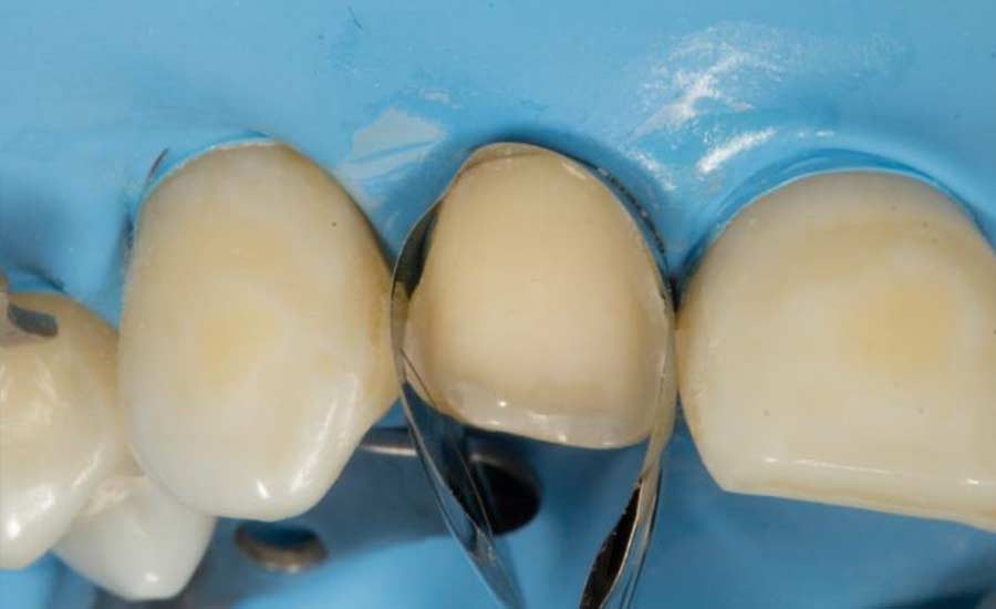 Dr Villares shape modification unica anterior 6