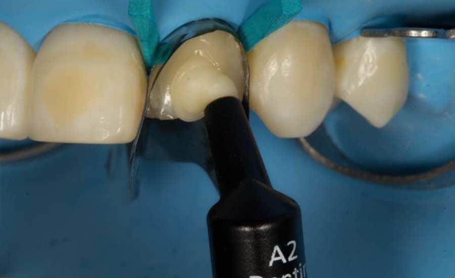 Dr Villares shape modification unica anterior 8