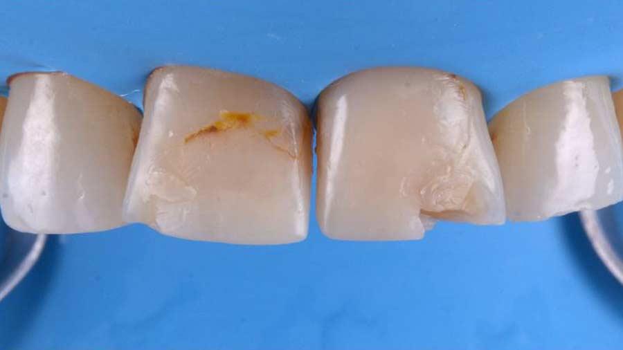 Dr Lazar anterior restoration Class 4 Unica anterior matrix 2
