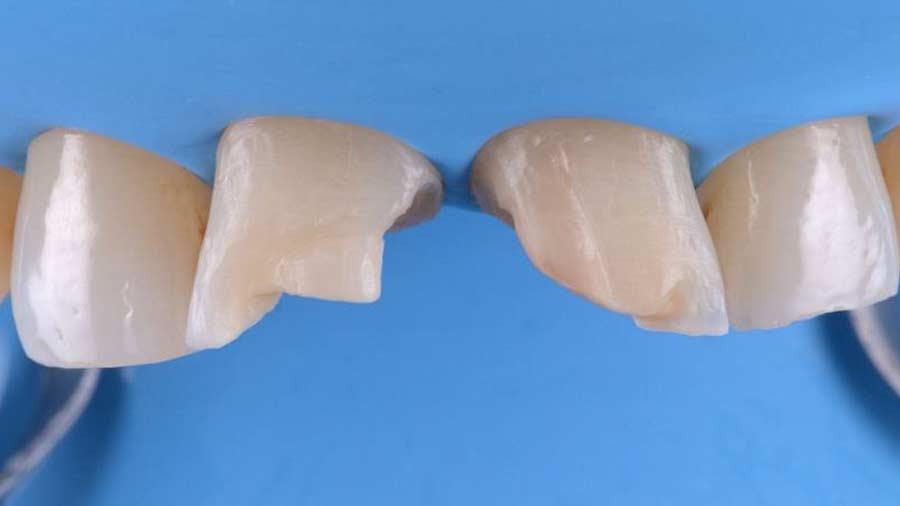 Dr Lazar anterior restoration Class 4 Unica anterior matrix 3