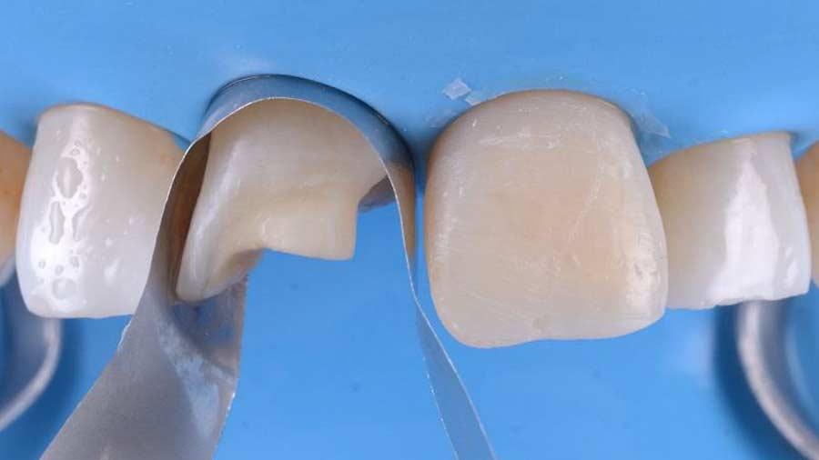 Dr Lazar anterior restoration Class 4 Unica anterior matrix 8