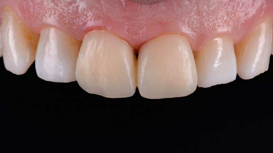 Dr Lazar anterior restoration Class 4 Unica anterior matrix 9