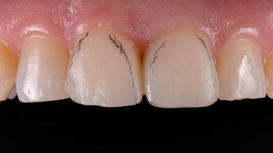 Dr Lazar anterior restoration Class 4 Unica anterior matrix 10