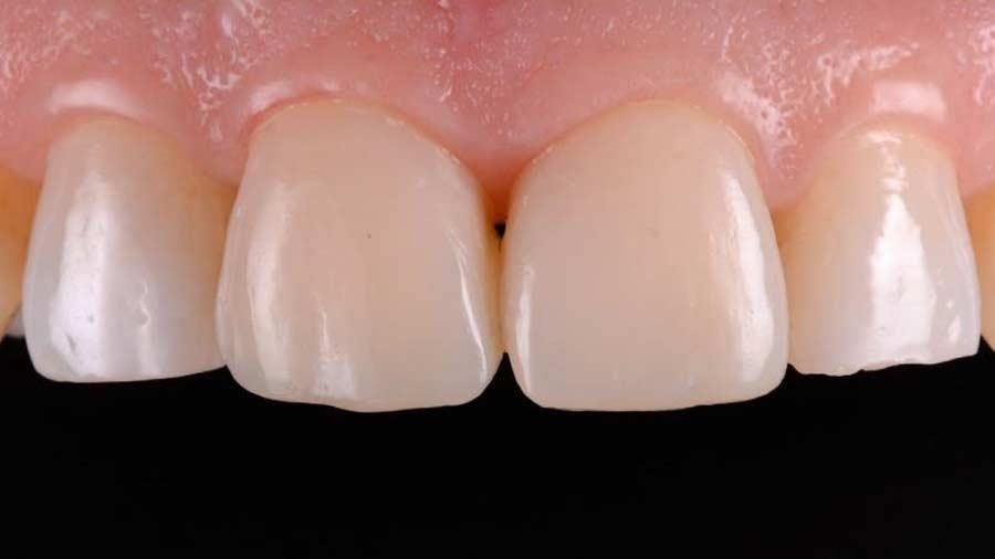 Dr Lazar anterior restoration Class 4 Unica anterior matrix 15