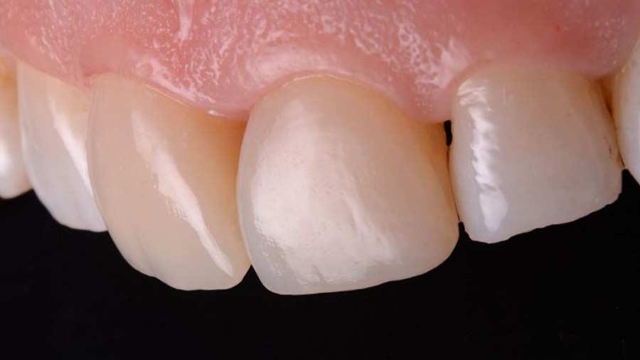 Dr Lazar anterior restoration Class 4 Unica anterior matrix 16