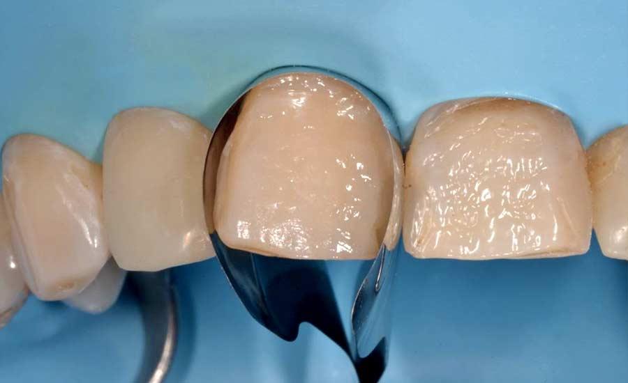 Facettes composites en technique directe – Unica anterior