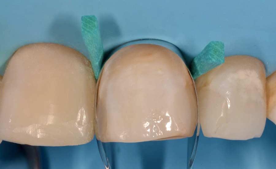 Dr Saracinelli Nicolo' Facettes composites en technique directe – Unica anterior 3