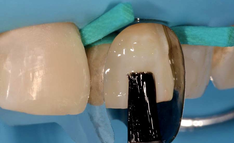 Dr Saracinelli Nicolo' Facettes composites en technique directe – Unica anterior 4