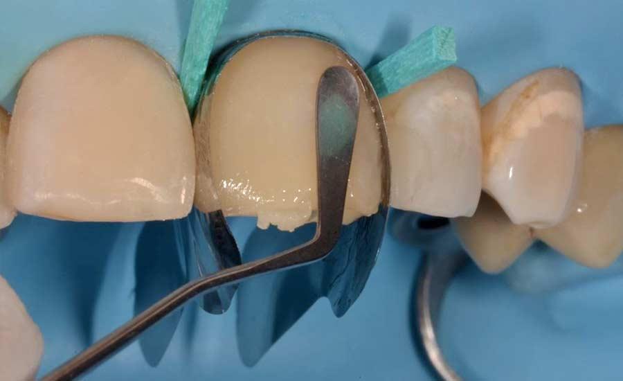 Dr Saracinelli Nicolo' Facettes composites en technique directe – Unica anterior 5