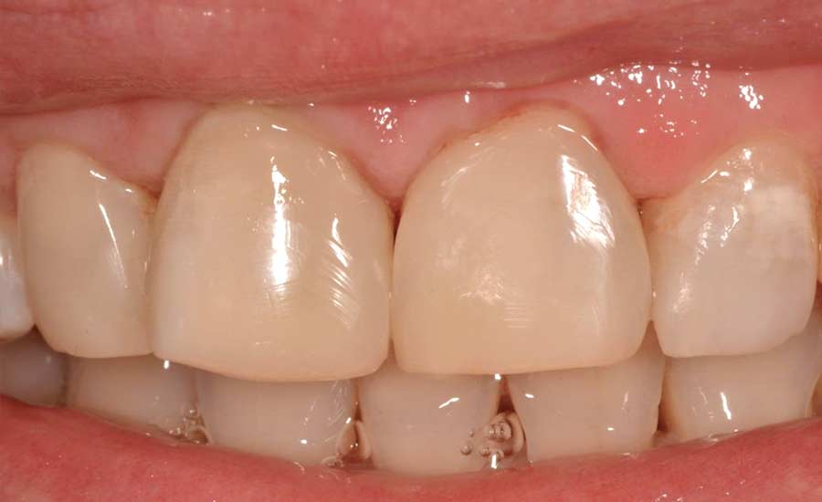 Dr Saracinelli Nicolo' Facettes composites en technique directe – Unica anterior 6