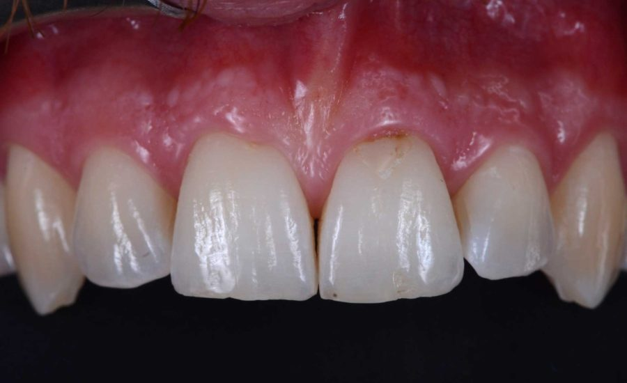 DR Chiodera Replacement of an old Class V restoration 1