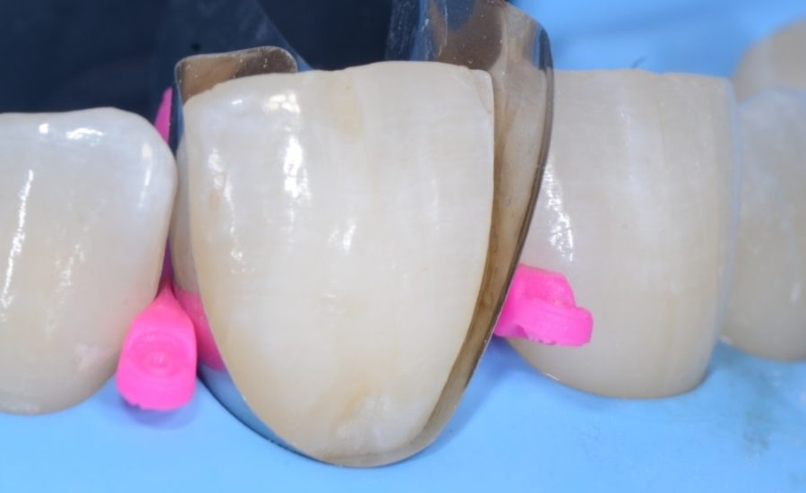 DR Chiodera Replacement of an old Class V restoration 3