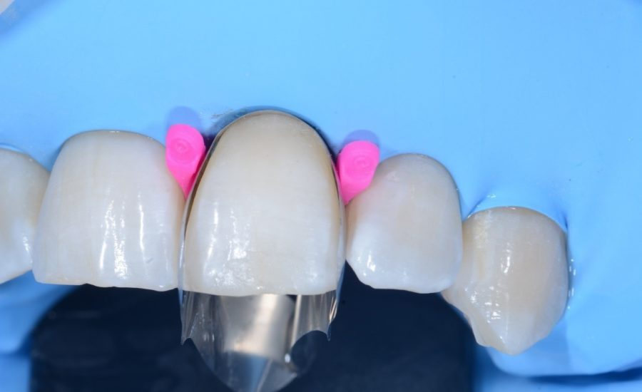 DR Chiodera Replacement of an old Class V restoration 4