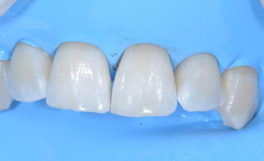 DR Chiodera Replacement of an old Class V restoration 5