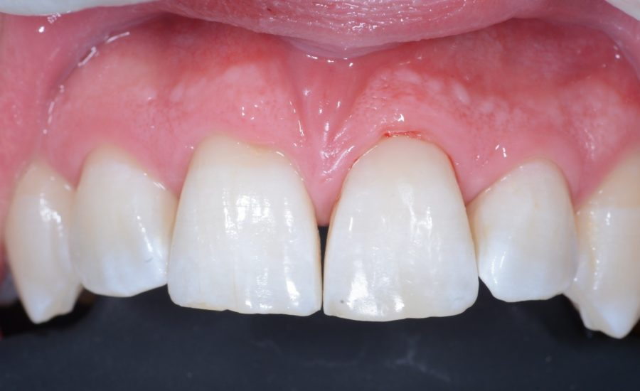 DR Chiodera Replacement of an old Class V restoration 6