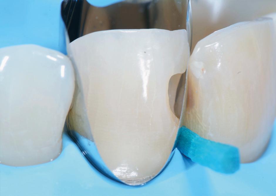 dr Lazar unica anterior restorations aesthetics restorative dentistry