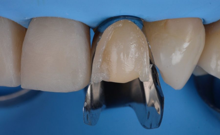 Dr Manauta Direct Stratification Veneers 10