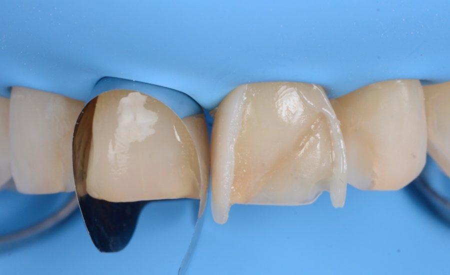 DR Manauta Direct Stratification Veneers 5