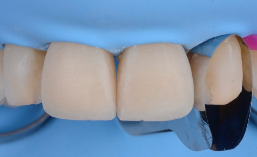 Manauta Direct Stratification Veneers