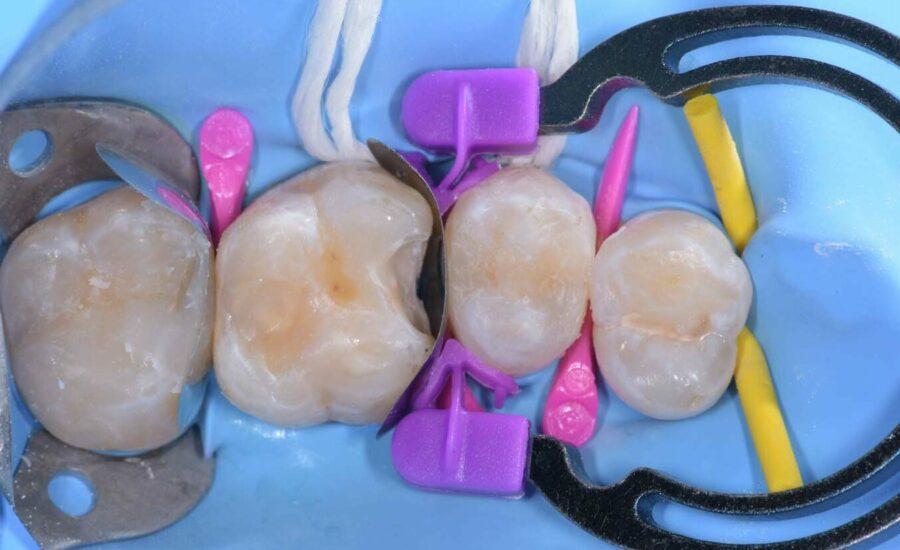 4Restauro di Classe II sul primo molare