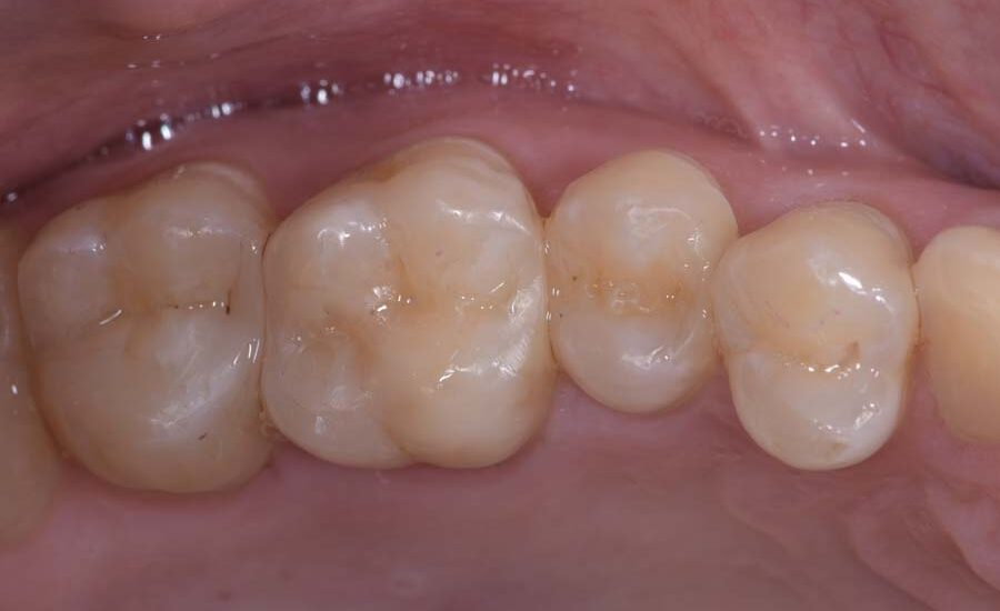 8 Class II restoration on first molar