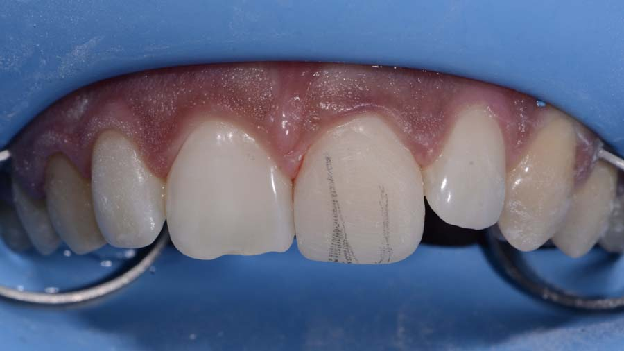 10 Post traumatic rehabilitation of incisors 11-21- Unica anterior - Prof. Gilbert Jorquera