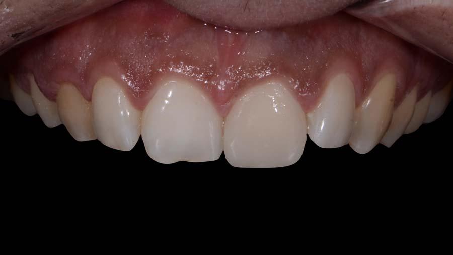 12 Posttraumatische Rehabilitation der Frontzähne 11 - 21 Unica anterior - Prof Gilbert Jorquera