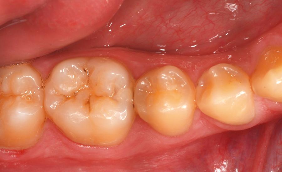 1 restauro di classe II di un giovane molare permanente con myQuickmat Forte sistema di matrici sezionali - Dr Papachroni