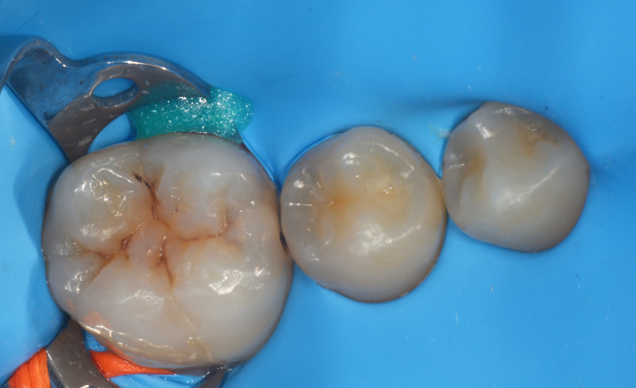 2 - class II restoration of a young permanent molar with myQuickmat Forte sectional matrix system - Dr Papachroni