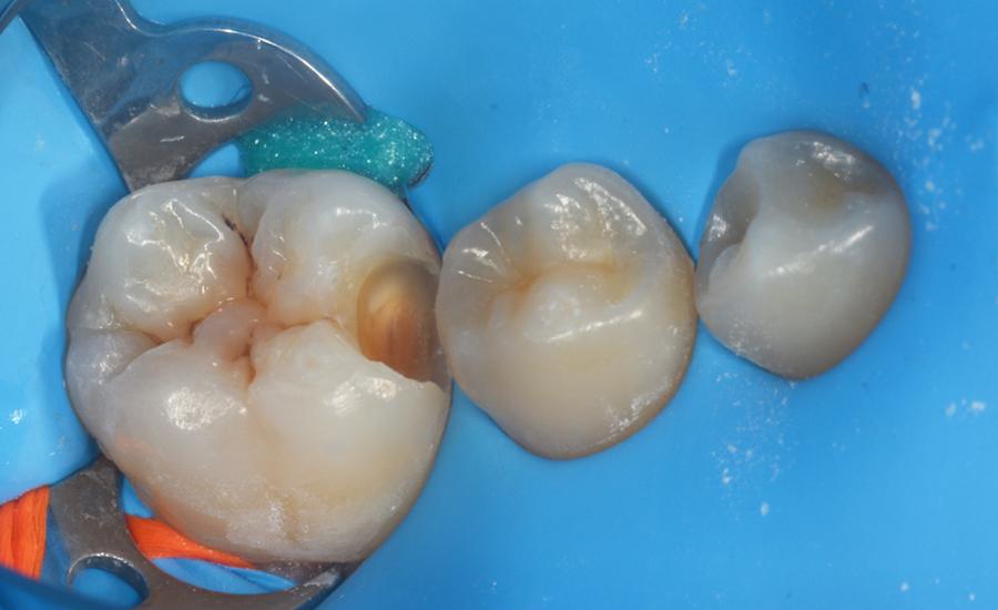 3 - restauro di classe II di un giovane molare permanente con myQuickmat Forte sistema di matrici sezionali - Dr Papachroni