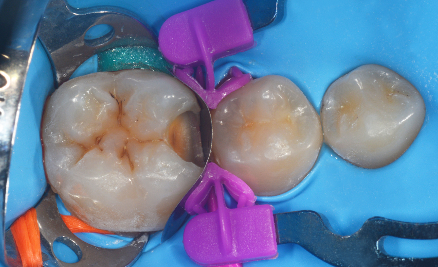 4 - class II restoration of a young permanent molar with myQuickmat Forte sectional matrix system - Dr Papachroni