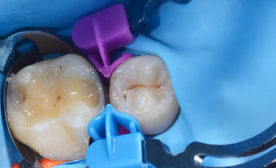 5 - Old composite replacement and Class II cavity direct restoration on young permanent molar with myQuickmat Forte sectional matrix system - Dr Marina Papachroni