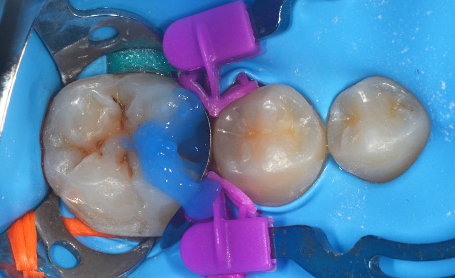 5 - Restauración directa de una cavidad clase II en un molar permanente joven con el sistema de matrices seccionales myQuickmat Forte - Dr Papachroni