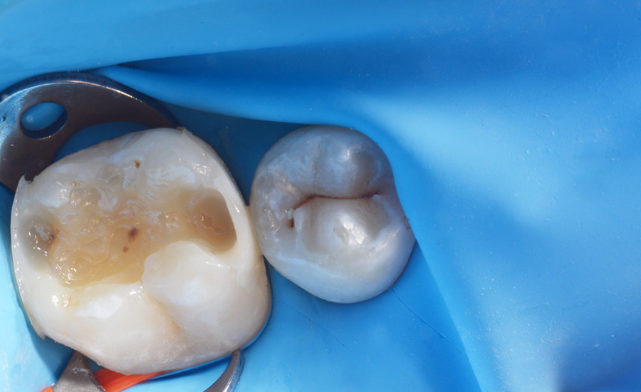 6 - Old composite replacement and Class II cavity direct restoration on young permanent molar with myQuickmat Forte sectional matrix system - Dr Marina Papachroni
