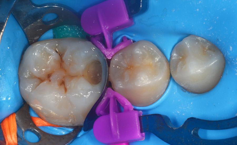 6 - restauro di classe II di un giovane molare permanente con myQuickmat Forte sistema di matrici sezionali - Dr Papachroni