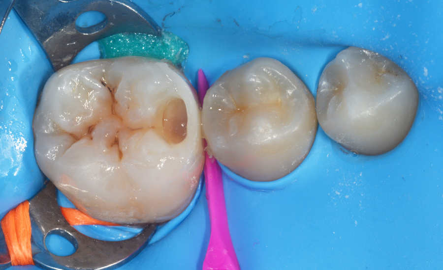 7 - class II restoration of a young permanent molar with myQuickmat Forte sectional matrix system - Dr Papachroni