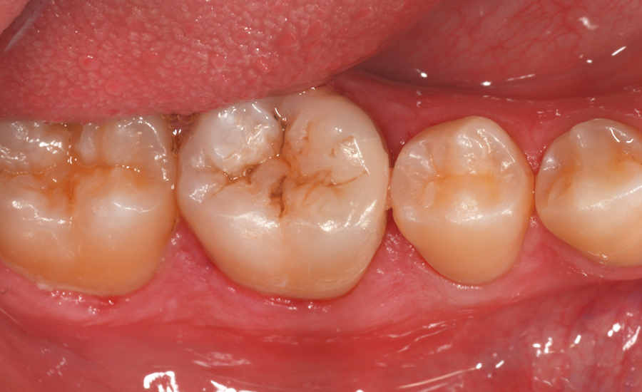9 - class II restoration of a young permanent molar with myQuickmat Forte sectional matrix system - Dr Papachroni