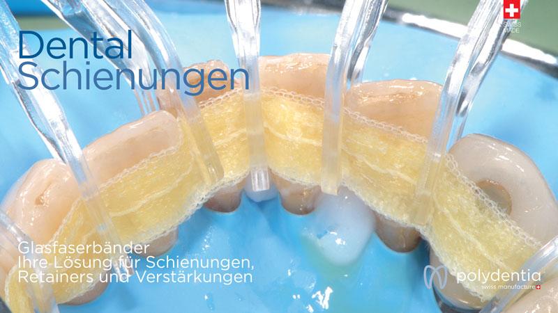 Sistemas de férulas de fibra de vidrio para la odontología conservadora