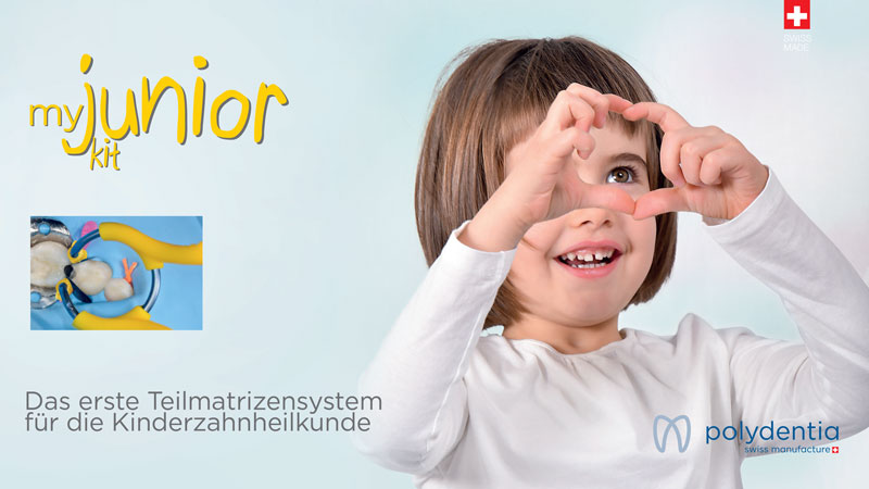 myJunior pediatric sectional matrices system for pediatric dentistry