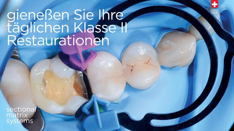 Sistemas de matrices seccionales para la odontología conservadora y restauradora